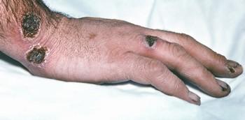 Симптомы сибирской язвы