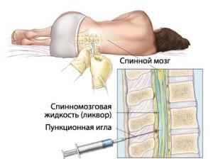 Процесс лечения менингита