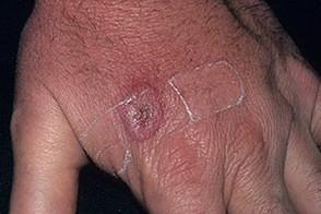 Кошачья царапина | Инфекции.нет - блог для врачей об инфекционных ...