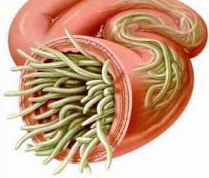 Аскаридоз – причины, симптомы и лечение