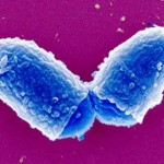 Этиология и эпидемиология и патогенез дифтерии
