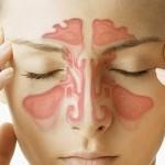 Хронический ринит: симптомы, причины, виды насморка и способы его устранения