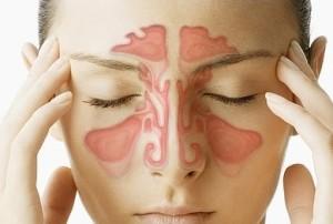 Как лечить хронический ринит?