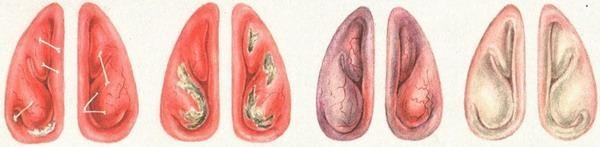 Аллергический ринит на форто