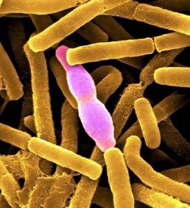 Возбудитель сибирской язвы – Bacillus anthracis