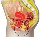 Выделения при бактериальном вагините