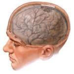 Диагностика и лечение церебрального арахноидита