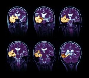 Последствия энцефалита мозга