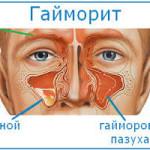 Гайморит: о чем может рассказать головная боль