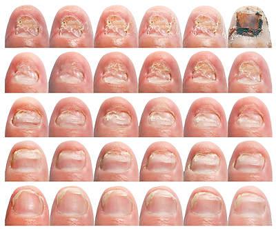 Средство для лечения грибка ногтей 75