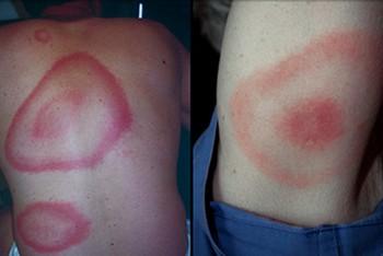 Симптомы клещевого боррелиоза