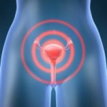 Причины появления кольпита. Особенности диагностирования и лечения