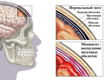 Менингит - нейроинфекция