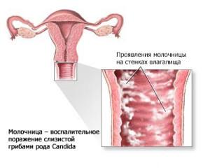 Развитие молочницы в женском организме