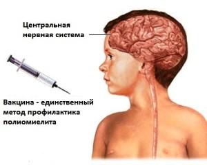 Вакцинация полиомиелита