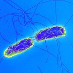 Актуальность, этиологии и эпидемиологии брюшного тифа брюшного тифа