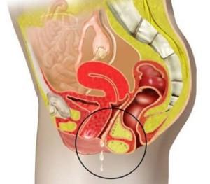 Симптомы вагинита