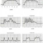 Классификация и этиология лихорадок, типы температурных кривых