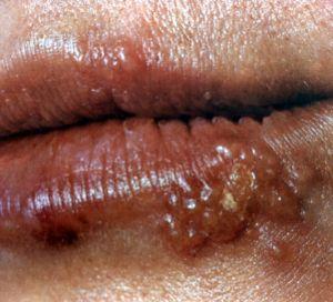 Проявление инфекции герпес
