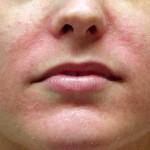 Микоз кожи – как правильно лечить
